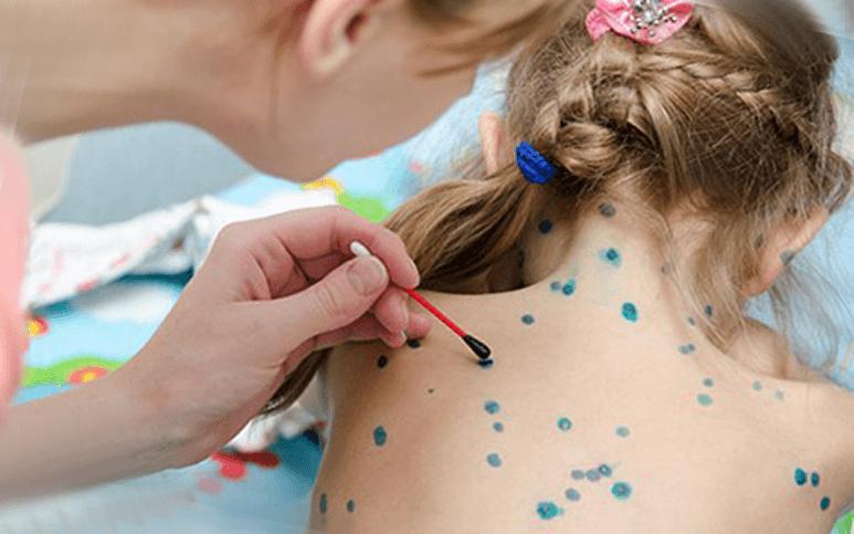 Сахарный диабет у детей симптомы и признаки  Лечение