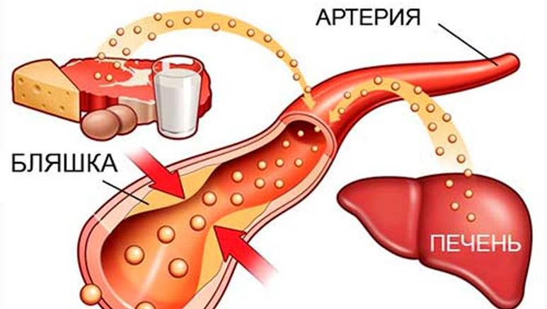 показатели холестерина в крови при беременности