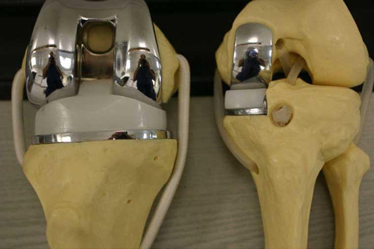 Эндопротезы коленного сустава