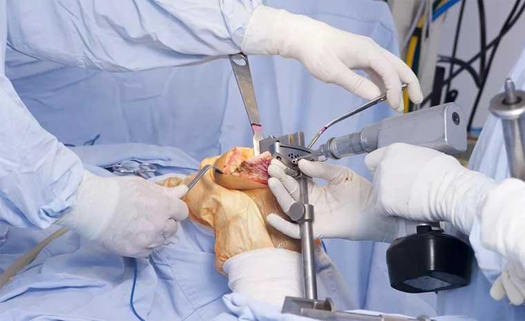 Операция по замене коленного сустава